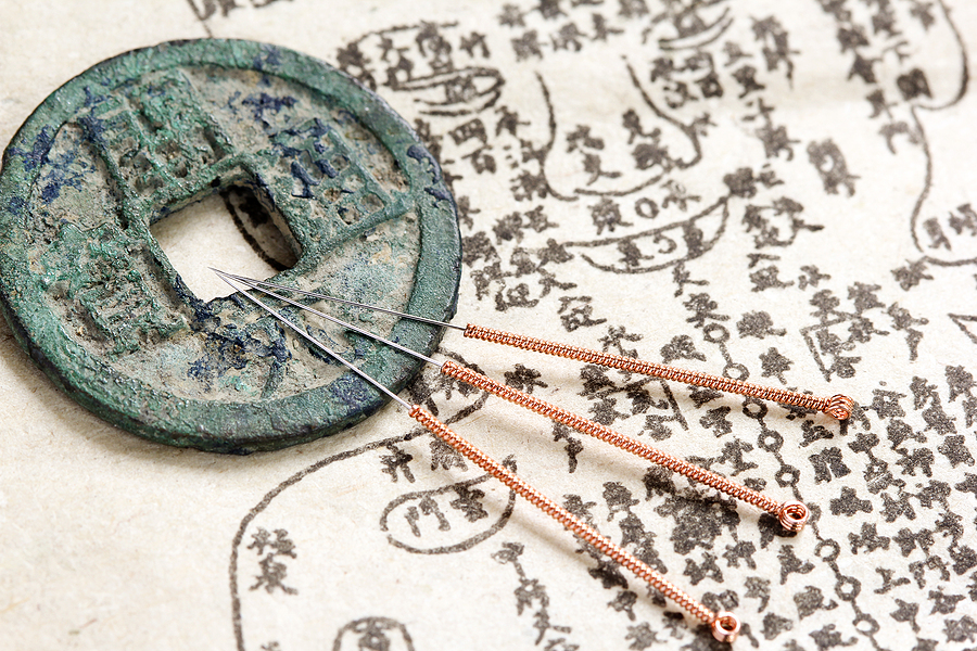 Acupuncture needles as ancient medicine